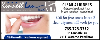 Call For Free Exam To See If Clear Aligners Will Work For You